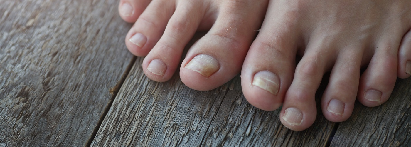 Emtrix Fungal Nail Treatment, 10ml.